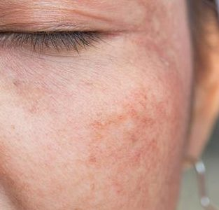 Hyperpigmentation – What is it? & How to Treat it