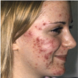 What is the Best Facial Treatment For Acne?
